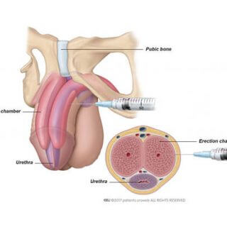 Intracavernous injections
